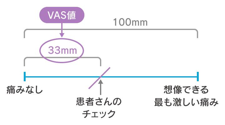 VASのイメージ